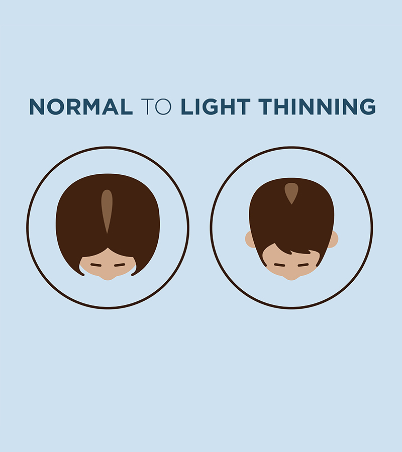 Normal to light thinning hair