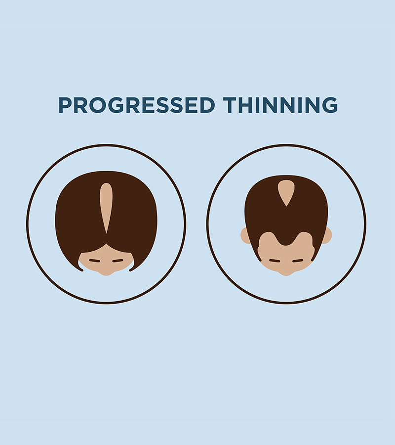 Progressed thinning hair